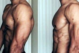 6 exercícios que podem ajudar a 'corrigir' seus ombros